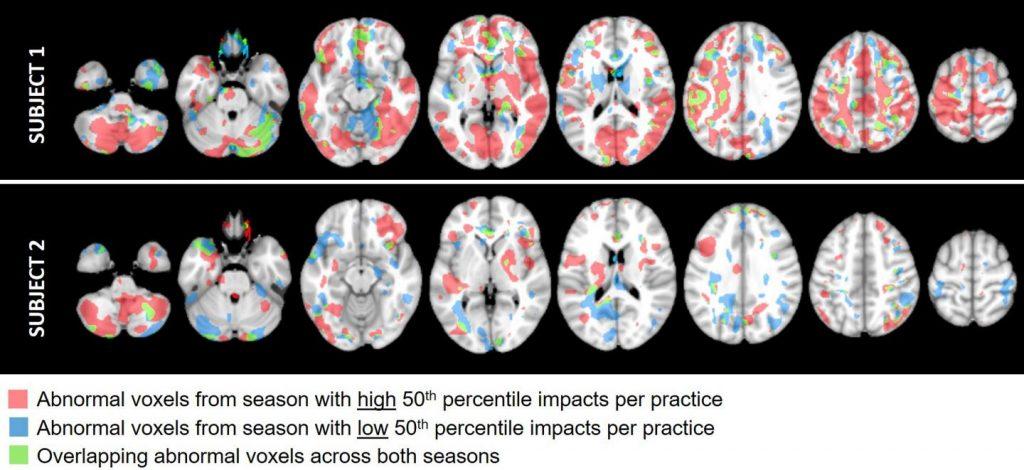 Efectos en la cabeza y hallazgos de imagen anormales en jugadores de fútbol jóvenes durante temporadas sucesivas